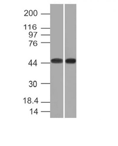 WB -  Napsin A (Lung Adenocarcinoma Marker) Antibody AH12713