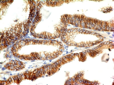 IHC -  E-Cadherin / CD324 (Intercellular Junction Marker) Antibody - With BSA and Azide AH12840