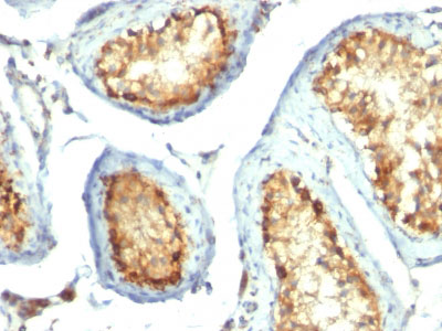 IHC -  Mitochondria (Marker for Human Cells, Granular RCC & Salivary Tumors) Antibody AH12890-7