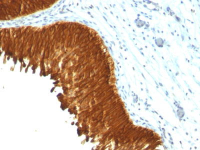 IHC -  Cytokeratin, Multi (Epithelial Marker) Antibody - With BSA and Azide AH12920-20