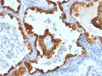 IHC -  Cytokeratin 8/18 Antibody - With BSA and Azide AH13055-20