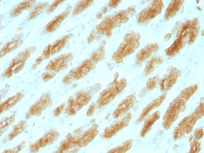 IHC -  Cytokeratin, Basic (Type II or HMW) (Epithelial Marker) Antibody - With BSA and Azide AH13061