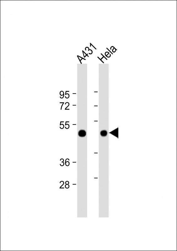 WB - RAD9 Antibody (BH3 Domain Specific) AP1318a