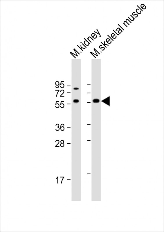 WB - Mouse Acvr2b Antibody (Center) AP13908c
