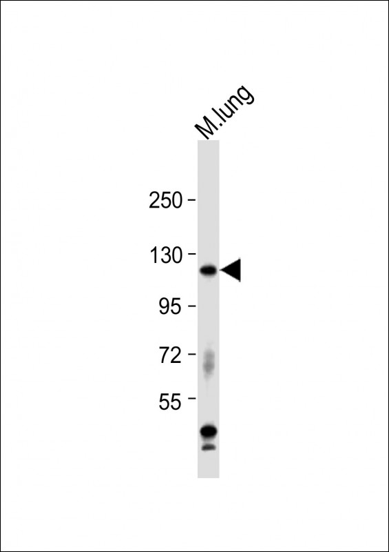 WB - Mouse Epha2 Antibody (Center) AP14619c