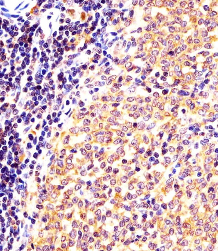 IHC-P - (Mouse) Nr4a2 Antibody (Center) AP21233c