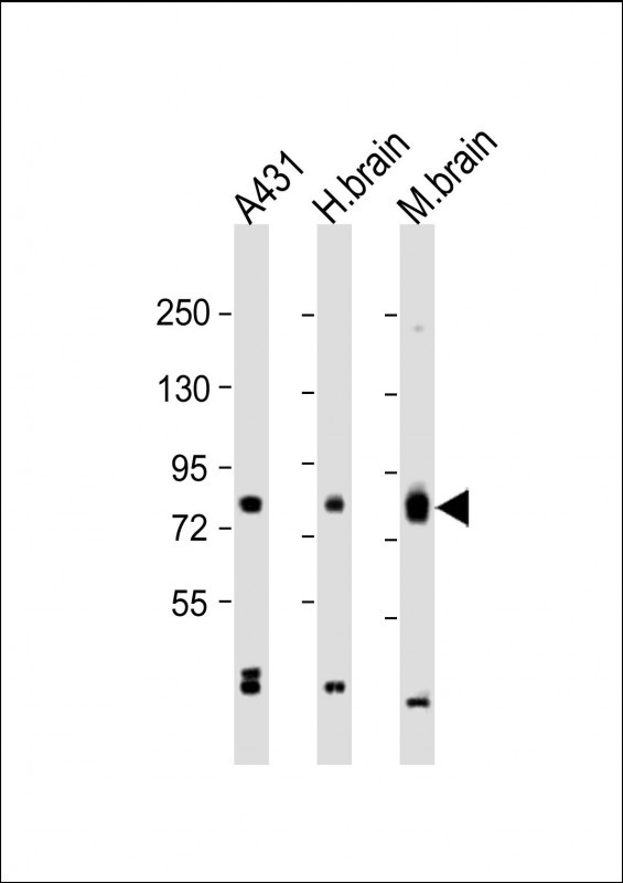 WB - PKC beta1/2 Antibody (Center) AP7016a
