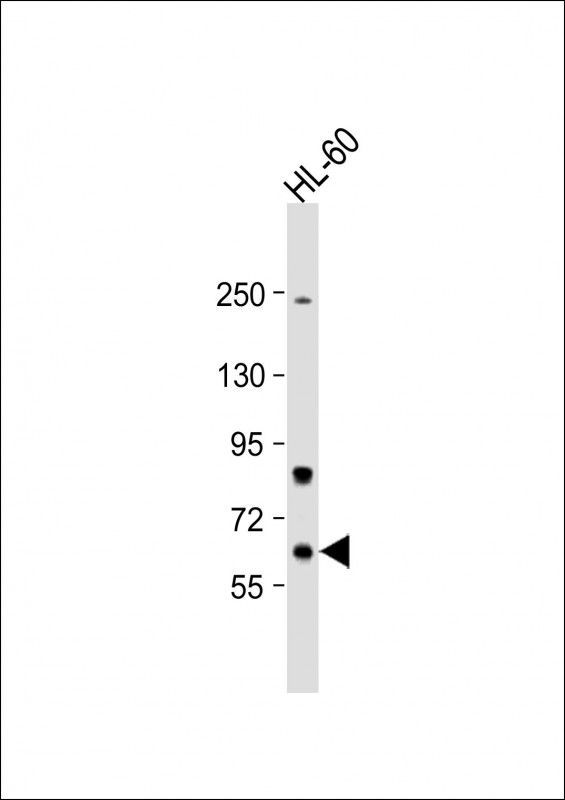 WB - Methionyl tRNA Synthetase Antibody (C-term) AP7841b