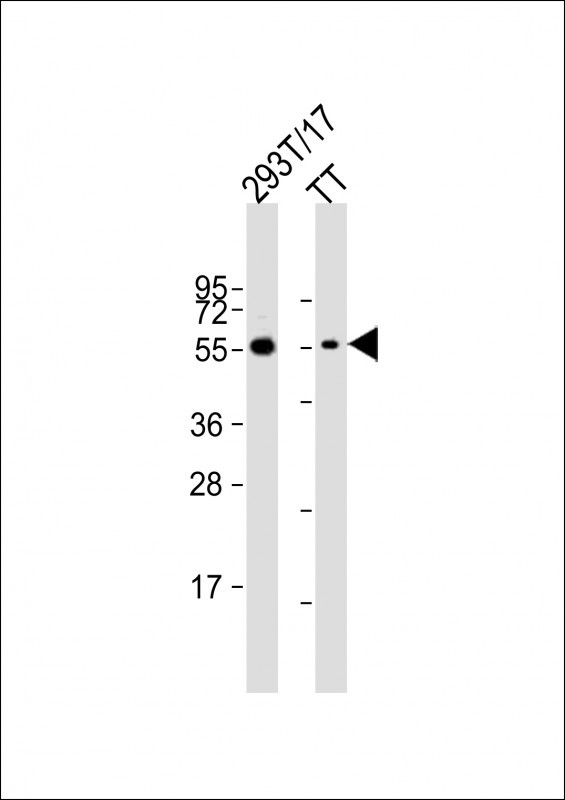 WB - CDC73 Antibody (Center) AP9181c