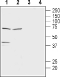 WB - Monocarboxylate Transporter 2 Antibody AG1527-025