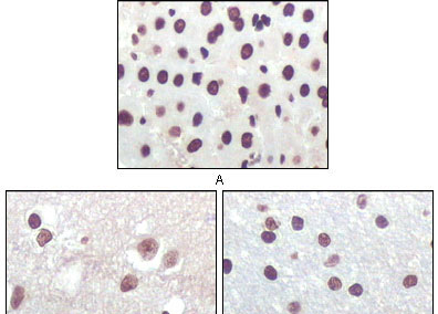 IHC - P16 (Mouse and Human) Antibody AO1102a