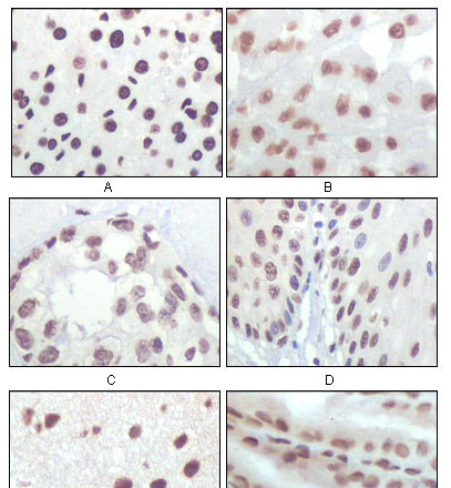 IHC - P16 (Mouse and Human) Antibody AO1103a