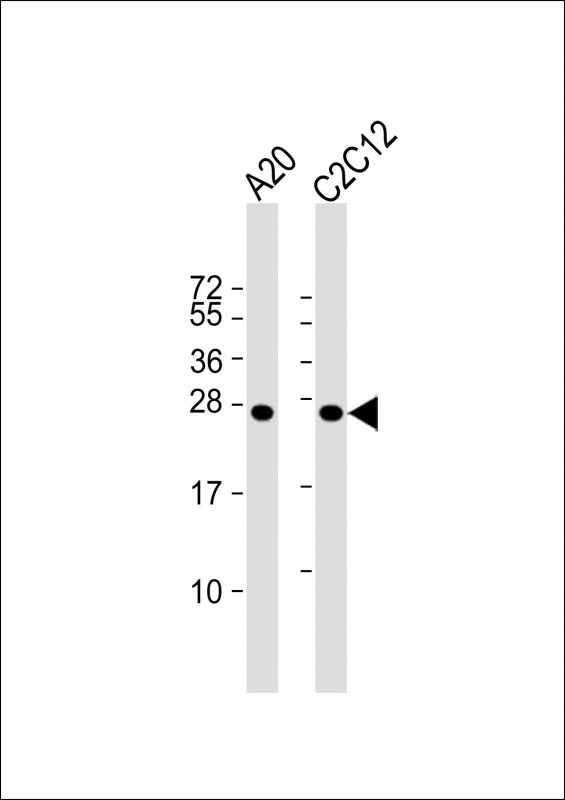 WB - mouse BAD Antibody (Center S112/S111/Y113) AP18695c