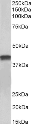 WB - Goat Anti-cardiac troponin T Antibody (internal region) AF4231a