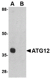 WB - Anti-ATG12 (Internal Region) Antibody  ABD10042