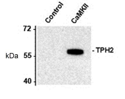 WB - Anti-Rat Tryptophan Hydroxylase 2 (pSer19) Antibody  ABD10991