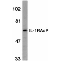 WB - Anti-Human Interleukin-1R Accessory Protein (aa525-540) Antibody  ABD11345