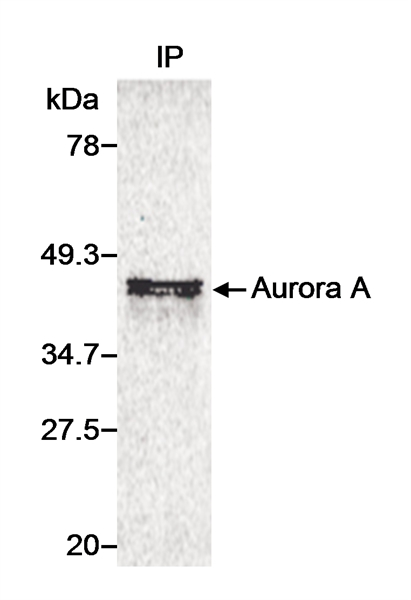 WB - Anti-Human Aurora-A Kinase Antibody  ABD11452