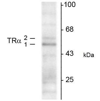 WB - Anti Human Thyroid Hormone Receptor Alpha 1/2 Antibody, clone 2103  ABD12636