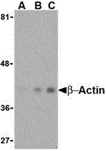WB - Anti Human Actin Beta (N-Terminal) Antibody  ABD13326