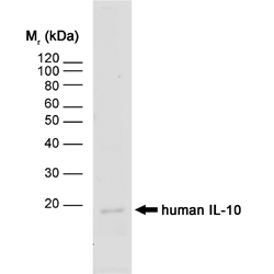 WB - Anti Human Interleukin-10 Antibody, clone JES3-12G8  ABD13400