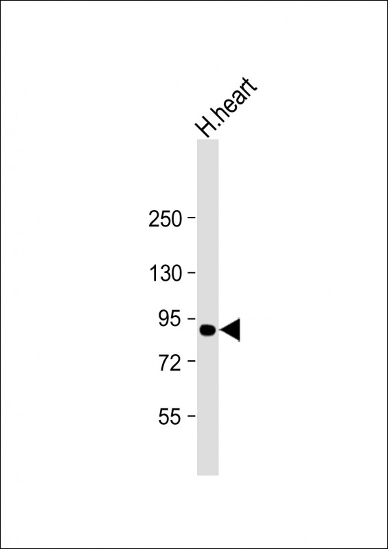 WB - ACO2 Antibody (Center) AM8607b