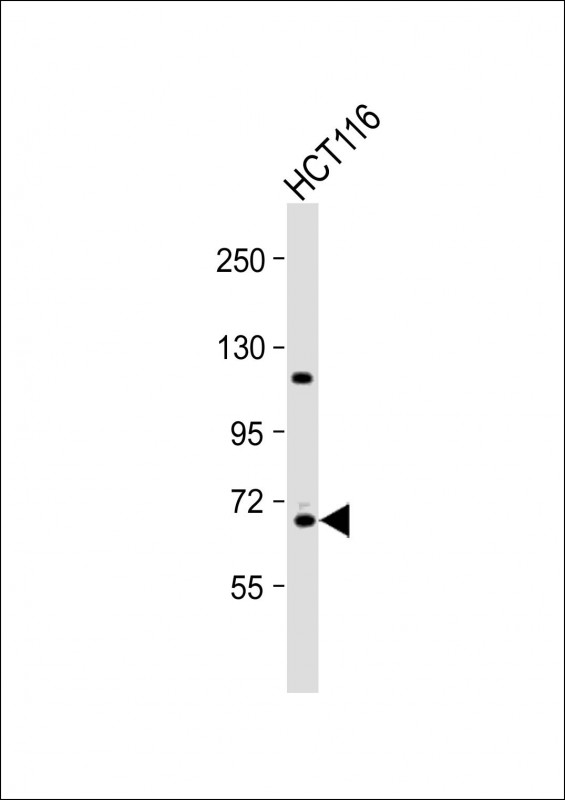WB - Cdc25A Antibody (Center) AP6272c