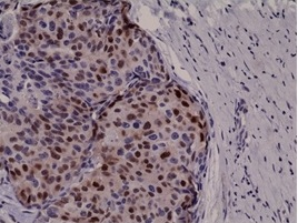 IHC - Anti-Cyclin D1, Rabbit Monoclonal Antibody ABV11823-50
