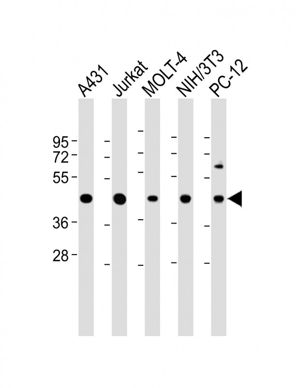 WB - ASS Antibody (Center) AP6829c