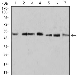 WB - Mouse Monoclonal Antibody to KLF2 AO2396a