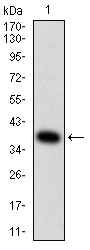 WB - Mouse Monoclonal Antibody to KRT10 AO2462a