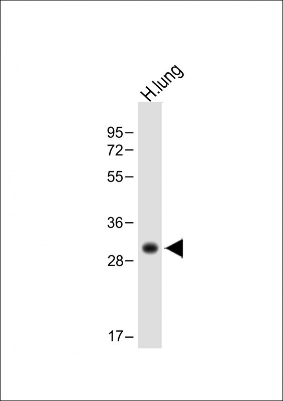 WB - HLA-DPB1 Antibody (Center) AP13834c