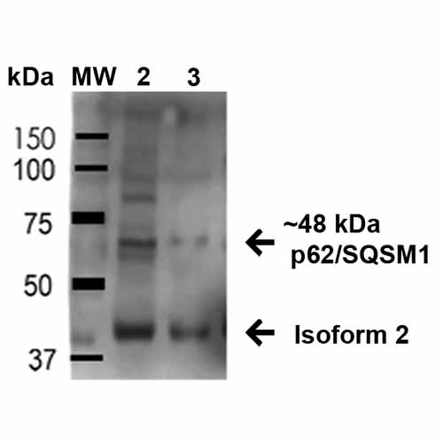 SQSTM1 Antibody - WB, ICC/IF - Buy Now! |Abgent