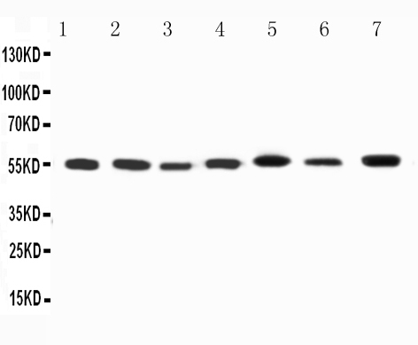 WB - Anti-Kv1.1 Potassium Channel Antibody ABO11604