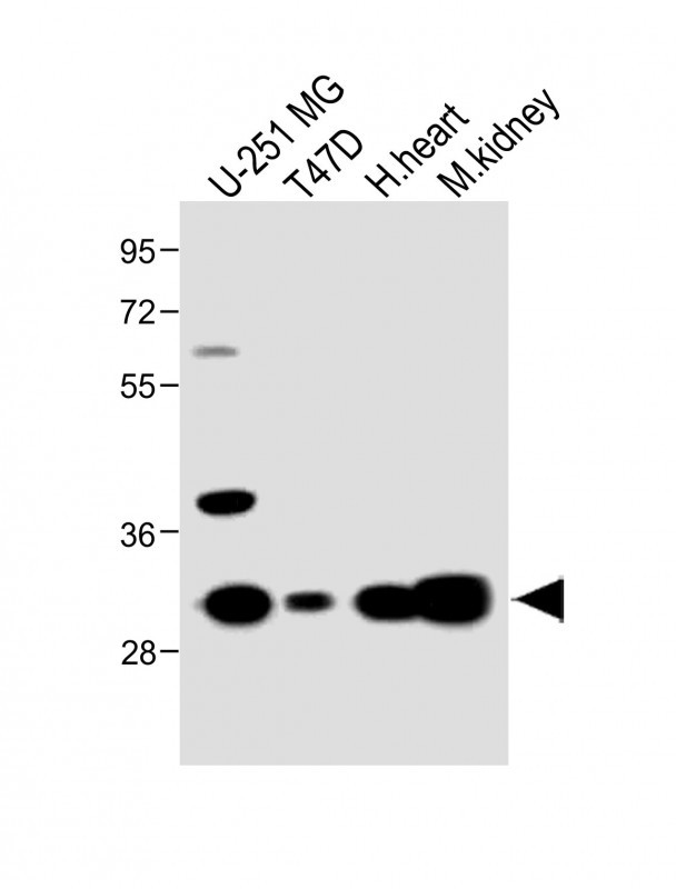 WB - MARCH5 Antibody (N-term) AP5677a
