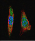 SUMO1 Antibody (N-term)