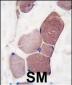 UCHL3 Antibody (C-term)