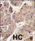 PIK3R3 Antibody (C-term)