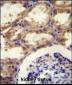 SEPT9 Antibody (C-term)