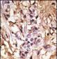 LC3 Antibody (APG8B) (C-term)