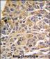 RIPK3 Antibody (N-term)