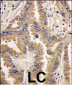Bad Antibody (Center)