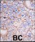 MAPK15 Antibody (N-term)