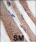 PI3KC3 Antibody (S34)