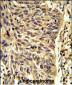 SNRPD1 Antibody (Center)