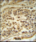 HFE Antibody (Center)