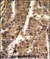 PSME2 Antibody (C-term)