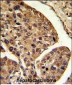 PSME2 Antibody (Center)