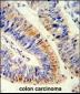 RELA Antibody (N-term)