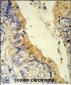 ACADM Antibody (Center)